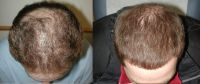 Hair Transplant Scalp Hair Transplant Treatments